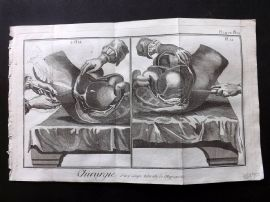 Diderot 1780's Antique Medical Print. Chirurgie 14 Operation